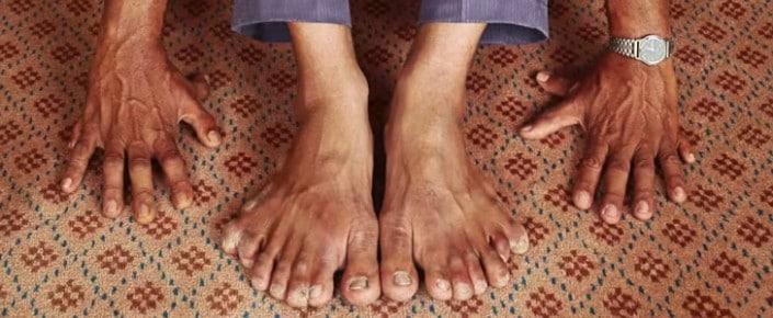 Dünyanın En Fazla Parmağına Sahip İnsanının Sizce Kaç Parmağı Vardır?